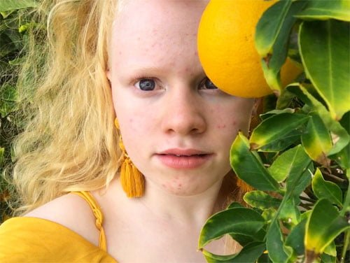 An upclose image of Karin, wearing yellow earrings and top, next to a lemon tree.